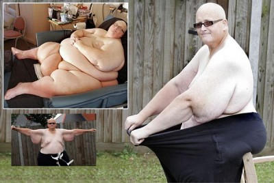 Transformation photos of the fattest man in the world