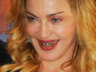 Celebrities who have fixed their teeth
