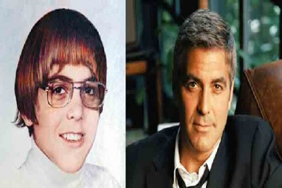 Celebrities who were ugly in childhood