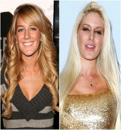 Top 18 Celebs with Plastic Surgery